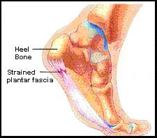 how to stop thickening of plantar fascia