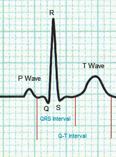 Normal Heart ECG Trace